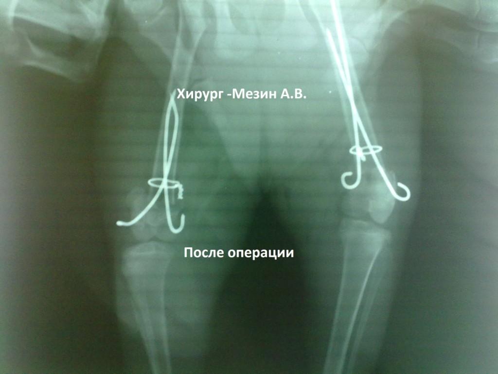 Переломы бедренной кости